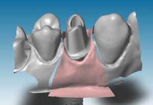 CAO Dental-Wings