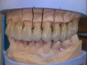 laboratoire prothésiste dentaire nimes gard, céramiques