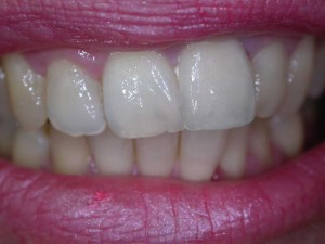 laboratoire prothésiste dentaire nimes gard, céramiqueslaboratoire prothésiste dentaire nimes gard, céramiques