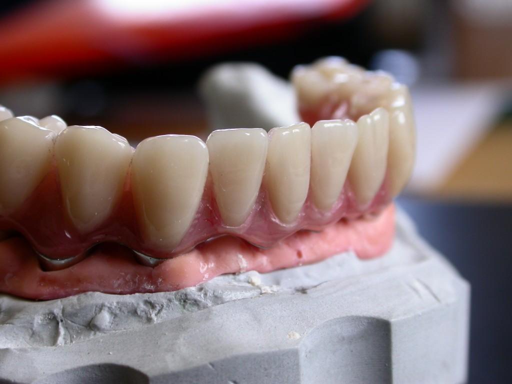 Barre Implantaire vue de Profil