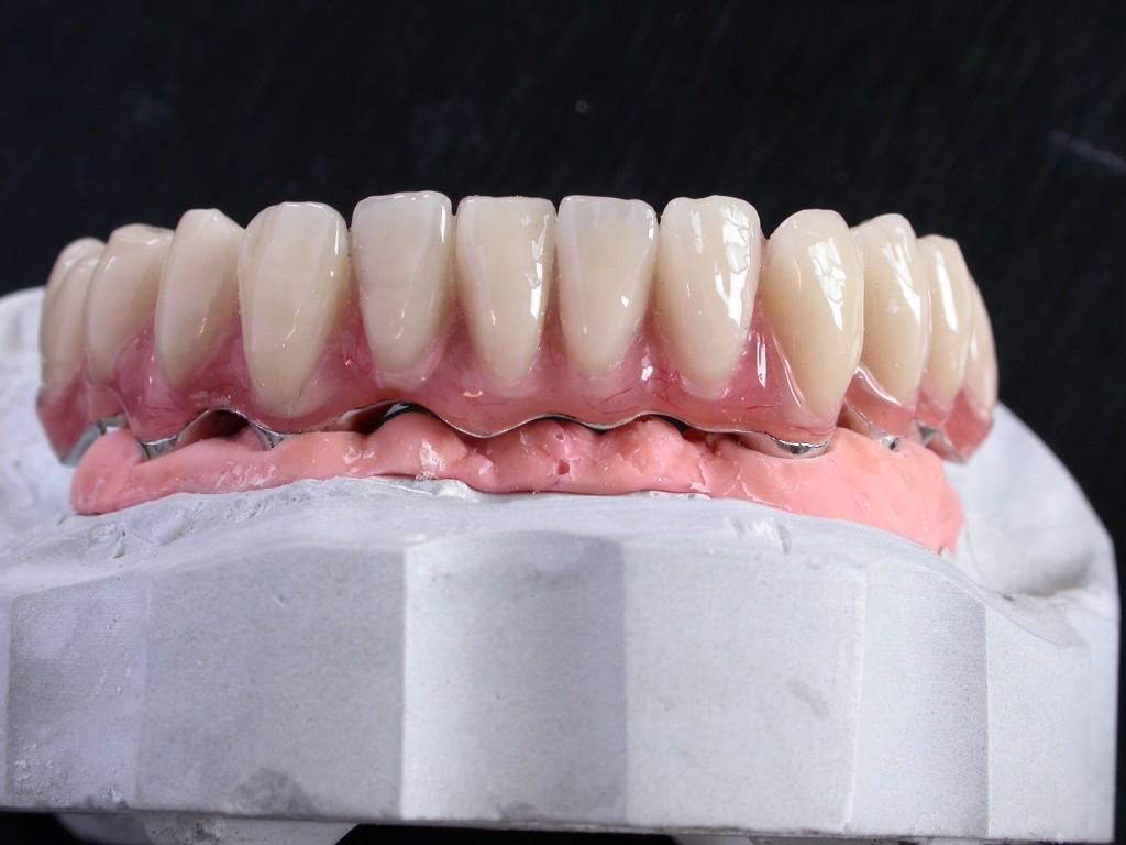 Barre Implantaire vue de Face